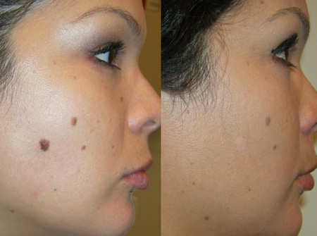 Mole Removal Skin Tags Removal Cost Plastic Surgery In Pakistan